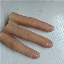 HY-E仿真人体假肢假手硅胶