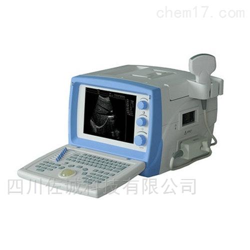 全数字超声诊断系统