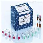 NFκB-p65 Ab-311 Antibody