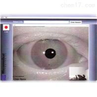 ED600Euroclinic视频眼震电图仪